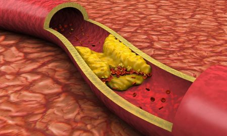 The TRUTH about cholesterol and its effects on health